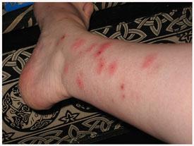 Bed Bugs Regional Pest Management
